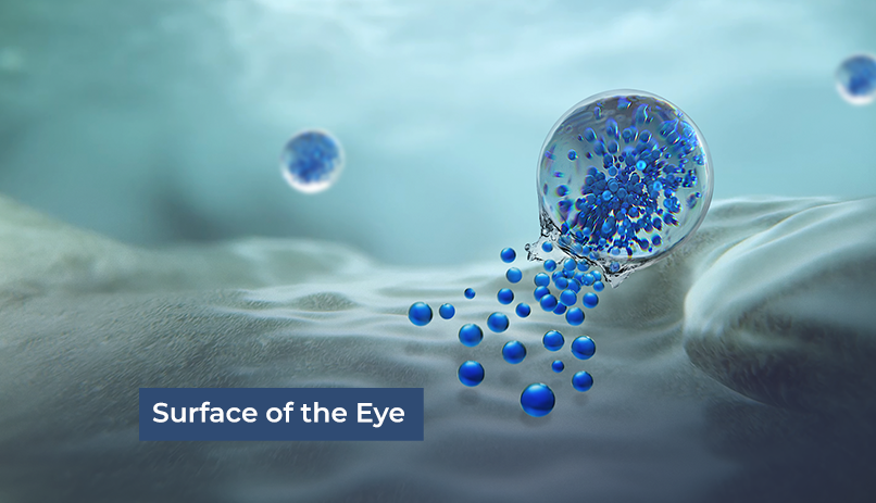 Visual representation of how medicine is released right where it is needed most (onto the surface of the eye).