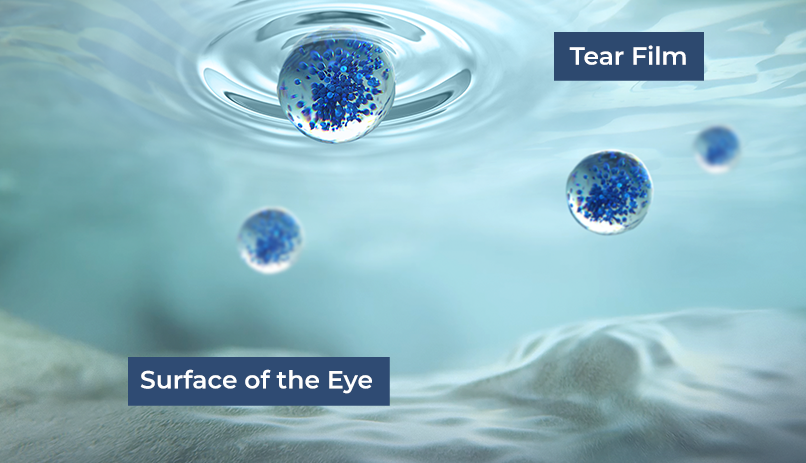 NCELL Technology delivering cyclosporine through the tear film onto the surface of the eye.